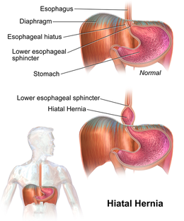 Hiatal Hernia Treatment